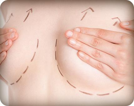 ανόρθωση μαστού - πλαστικός χειρούργος ιωάννινα