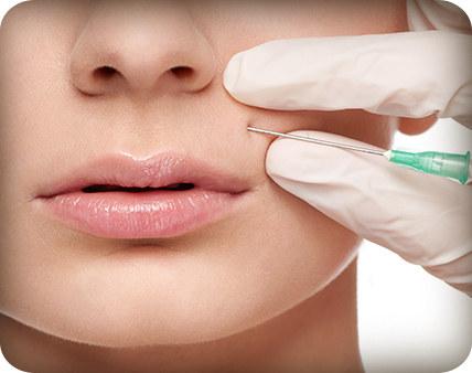 υαλουρονικό οξύ - πλαστικός χειρούργος ιωάννινα