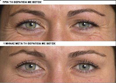 botox-4